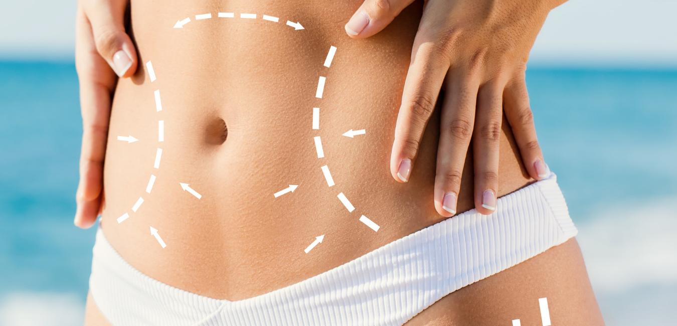 dikker worden na liposuctie